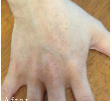【ビフォーアフター】洗剤まけの荒れた右手甲